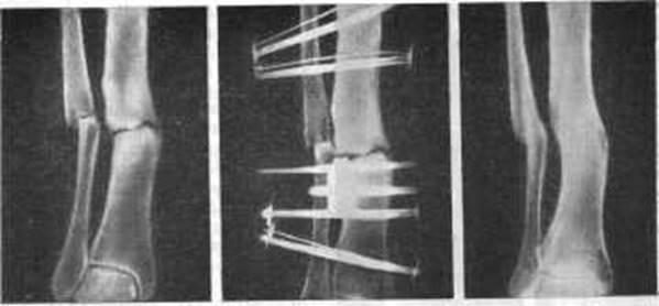 Ложные суставы реферат бубновский упражнения для коленных суставов в домашних условиях видео