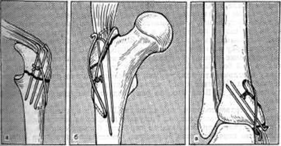 Перелом локтевой кости упражнения