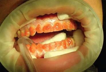 Реферат по отбеливанию зубов 5845