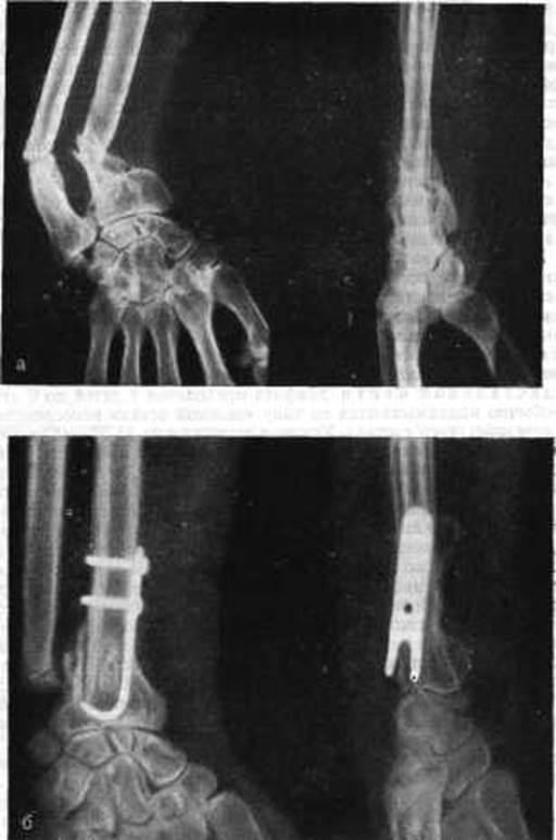 биопсия коленного сустава в краснодаре