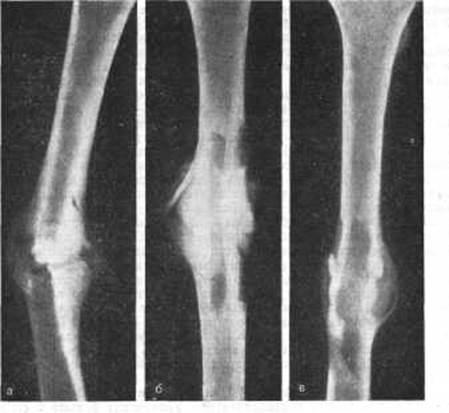 Для быстрого сращивания костей после перелома