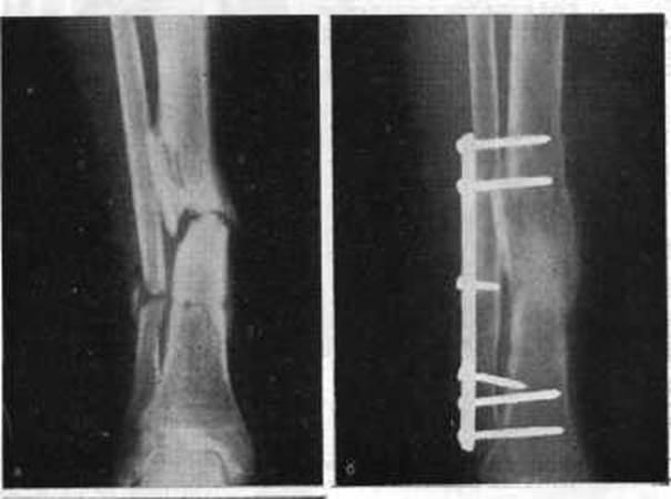 ложный сустав лучевой кости