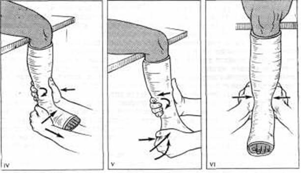 массаж голеностопного сустава после гипса видео